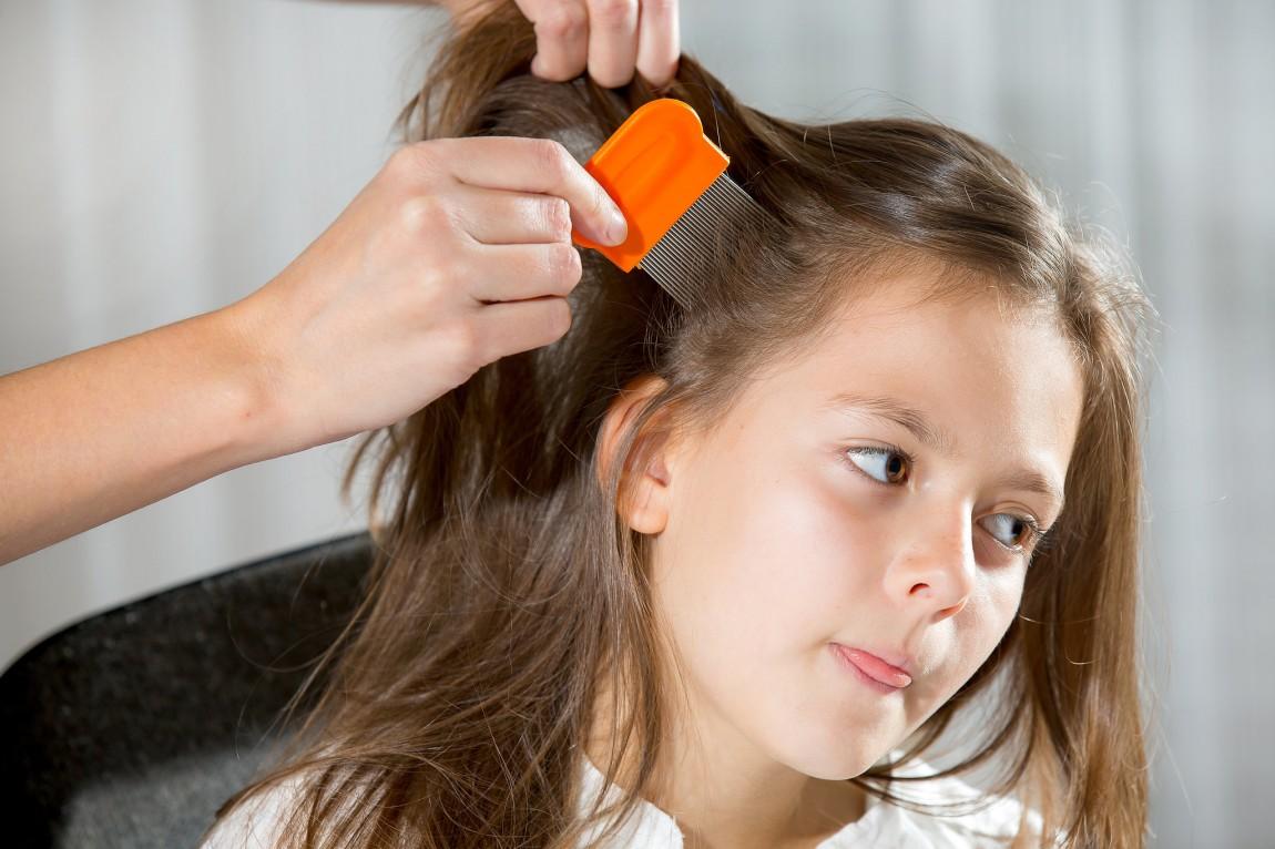 GREY HAIR IN CHILDREN