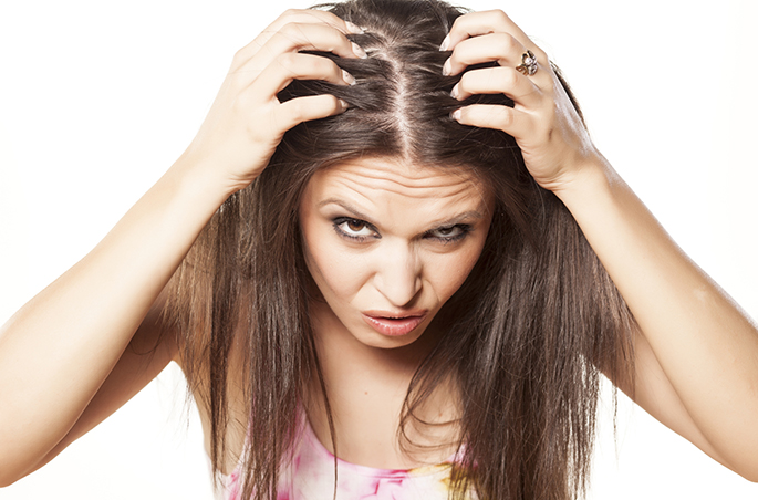 Image result for stress dandruff""