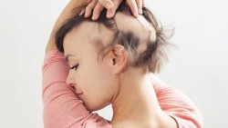 DOES CANCER LEAD TO HAIR LOSS?