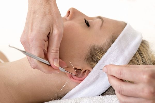 HOW TO LOSE WEIGHT WITH EAR ACUPUNCTURE