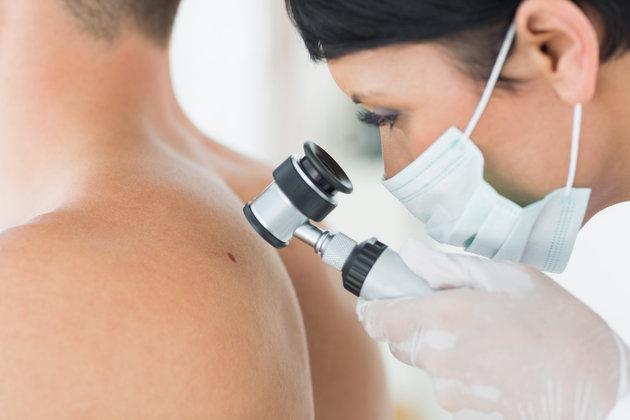 Black spots on human body