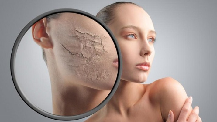 How To Get Rid Of Dry Skin?