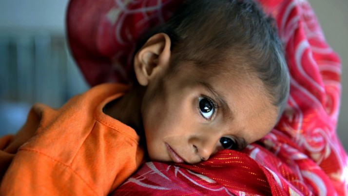 Malnutrition – Everything You Need To Know About It