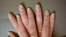 Nail Psoriasis – Causes, Symptoms & Treatments
