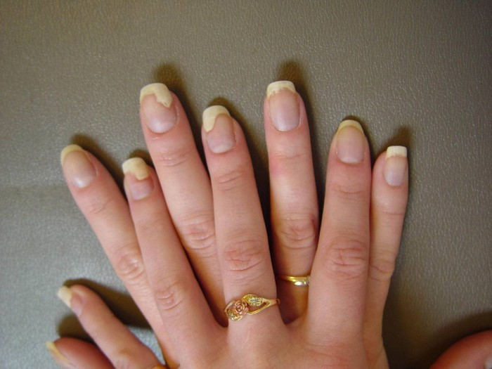 Nail Psoriasis Causes Symptoms Treatments