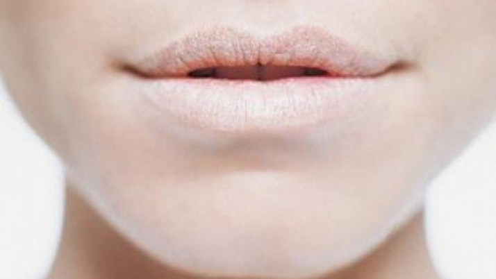 Top 10 Beauty Tips For Dry Lips