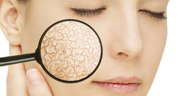 Fairness types for dry and dull skin