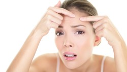 Adult Acne – Types, Causes, Treatment and Care