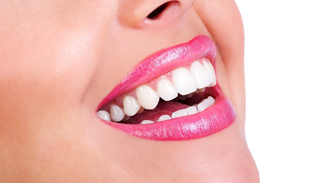 BLEEDING LIPS- HOW TO REDUCE THE FINE LINES