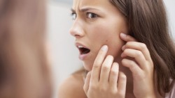 Effective Tips to Cure and Prevent Teenage Acne