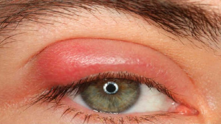 How to Remove Pimples on Eyelids?