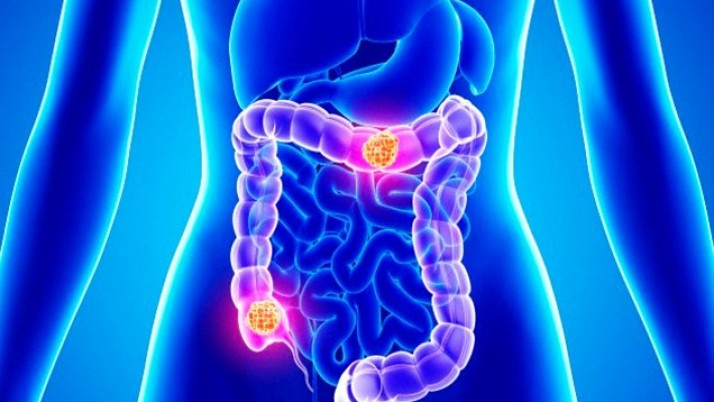 Natural Ways To Treat Colon Cancer