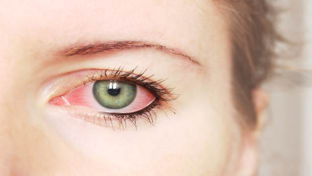 Natural Ways to Treat Itchy Eyes
