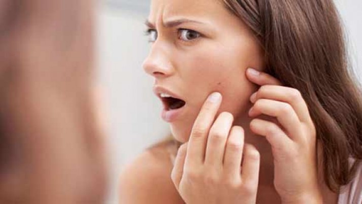 SIMPLE BUT VERY EFFECTIVE ACNE VULGARIS TREATMENTS