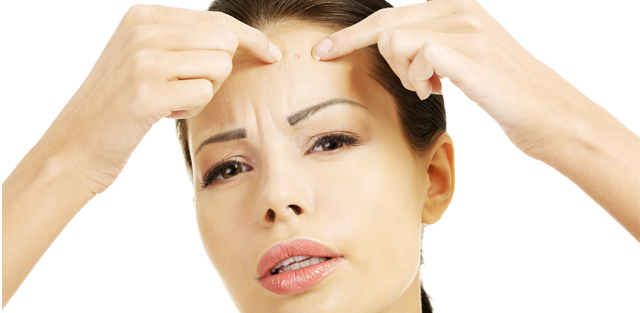 SIMPLE TIPS TO CONTROL ACNE IN TEENAGERS