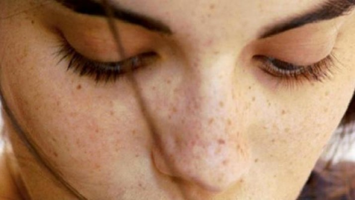 SIMPLE TIPS TO GET RID OF BLEMISHES