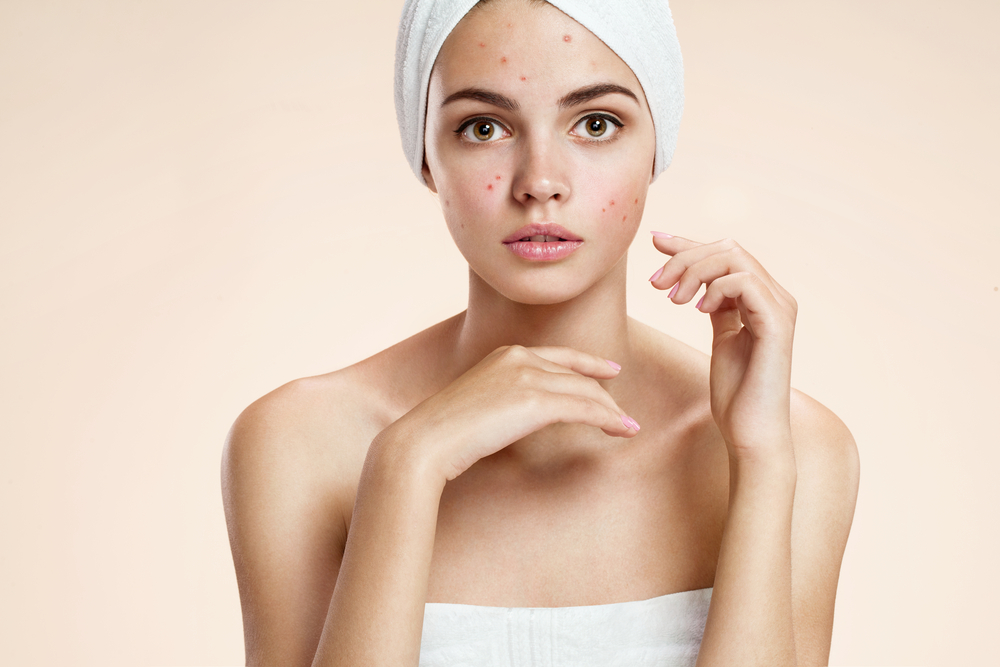 Simple Home Remedies For Pimples/Acne