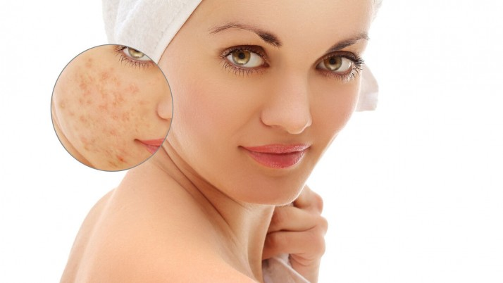 Simple Ways To Remove Pimples Overnight