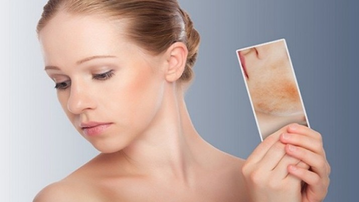 Simple Ways to Get Rid Of Chin Acne naturally