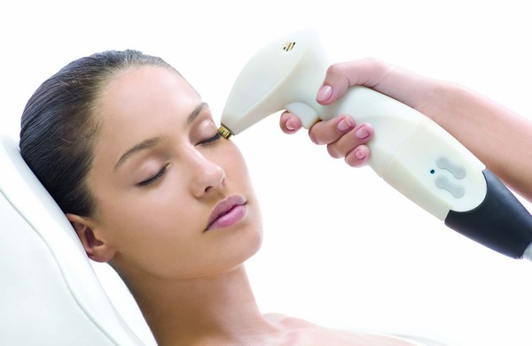 Types of Laser Treatments for Acne Scars and Their Benefits