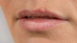 WAYS TO TAKE CARE OF PIMPLES ON MOUTH AND LIPS-ACT NOW