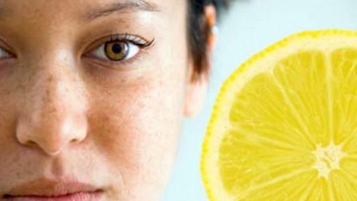 Simple Ways To Get Rid Of Freckles