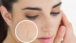 Simple remedy for treating dry skin acne