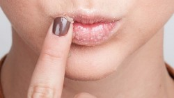 HOW TO PREPARE THE NATURAL GINGER LIP SCRUB?