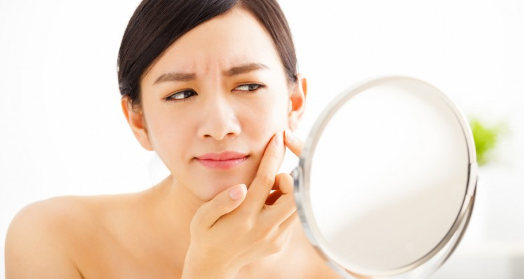 How to get rid of pimples marks Remove
