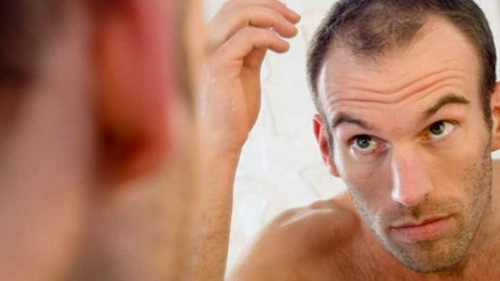 Side Effects Of Hair Transplantation