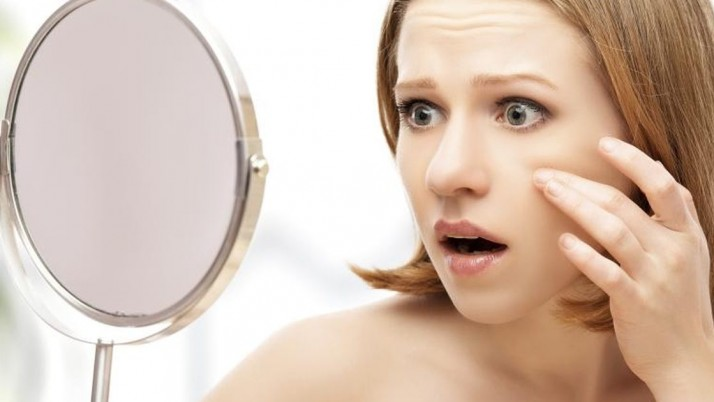 Use of hydrogen peroxide to remove blackheads