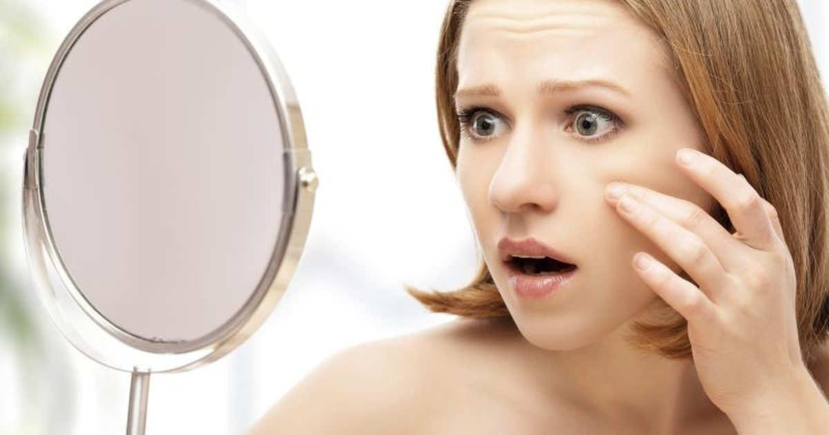 Use Of Hydrogen Peroxide To Remove Blackheads Beauty And Style