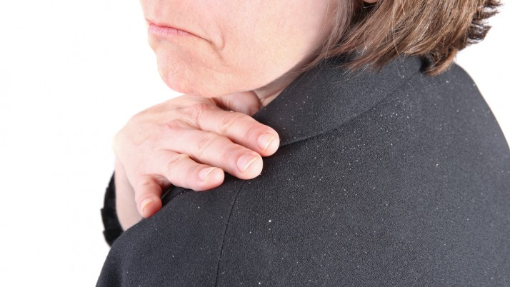 CAUSES OF DANDRUFF YOU SHOULD BE AWARE OF