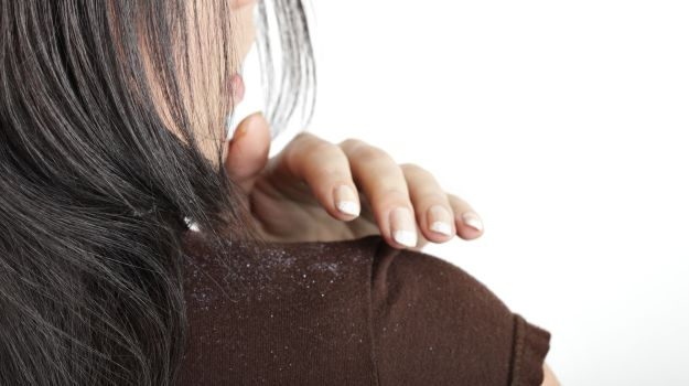 Home remedies to treat dandruff